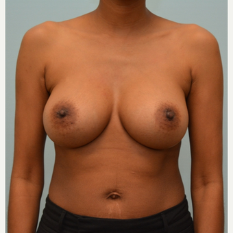 Breast Augmentation With Natrelle 410 Shaped Implants after 3298746