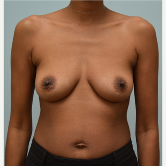Breast Augmentation With Natrelle 410 Shaped Implants before 3298746
