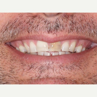 35-44 year old man treated with Porcelain Veneers before 1656695