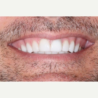 35-44 year old man treated with Porcelain Veneers after 1656695