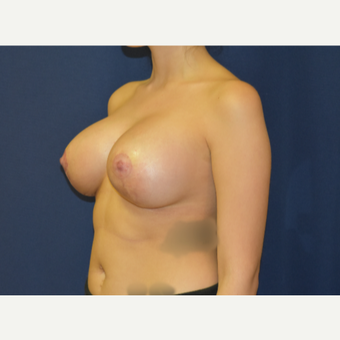 25-34 year old woman treated with Breast Lift with Implants after 3792027