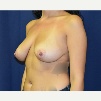 25-34 year old woman treated with Breast Lift with Implants before 3792027