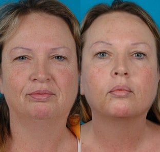 51-year-old woman treated with Botox. before 3265085