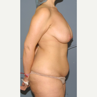 35-44 year old woman treated with Mommy Makeover before 3502425