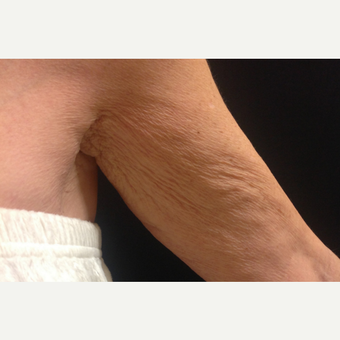 55-64 year old woman treated with Stretch Marks Treatment