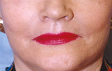 Lip Augmentation after 840471