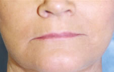 Lip Augmentation before 840471