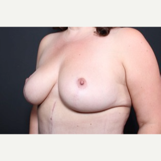 35-44 year old woman treated with Breast Lift after 3851228
