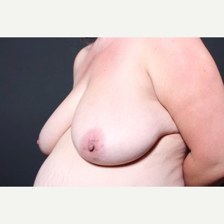 35-44 year old woman treated with Breast Lift before 3851228