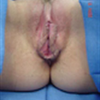 35-44 year old woman treated with Labiaplasty before 3282295