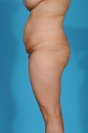 28 year old woman treated with Tummy Tuck 1700093