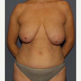 45-54 year old woman treated with Mommy Makeover before 3512299