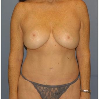 45-54 year old woman treated with Mommy Makeover after 3512299