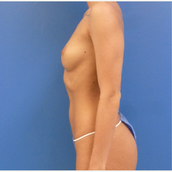 26 y.o. female – Breast Augmentation – 550cc Moderate Profile Saline Implants. before 3782712