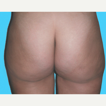 Liposuction after 3810626