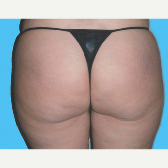 Liposuction before 3810626