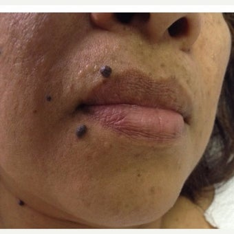 35-44 year old woman treated with Birthmark Removal