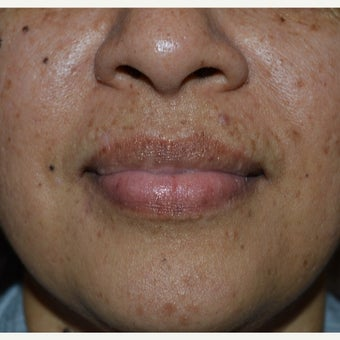 35-44 year old woman treated with Birthmark Removal after 2571259