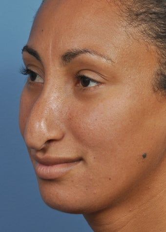25-34 year old woman treated with Rhinoplasty before 2106940
