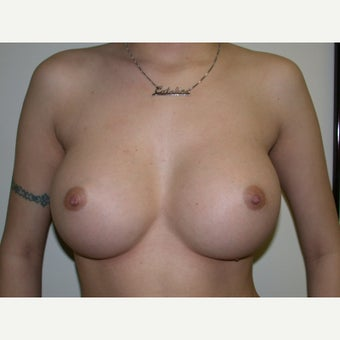 18-24 year old woman treated with Breast Augmentation after 2494344