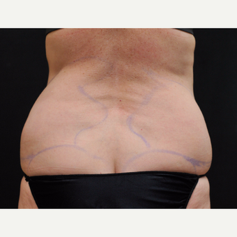 55-64 year old woman treated with Laser Liposuction before 3775885