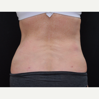 55-64 year old woman treated with Laser Liposuction after 3775885