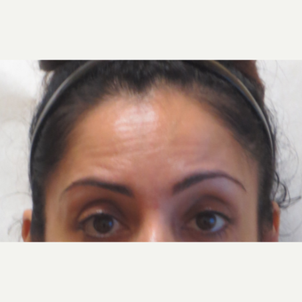 35-44 year old woman treated with Botox before 3381402