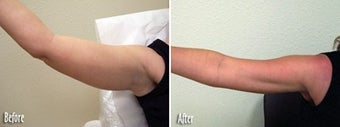 Mesotherapy to upper arms before 6514
