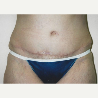 Tummy Tuck after 3629347