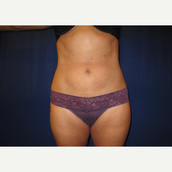 35-44 year old woman treated with Smart Lipo after 3804015