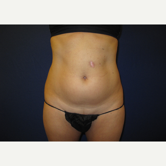 35-44 year old woman treated with Smart Lipo before 3804015