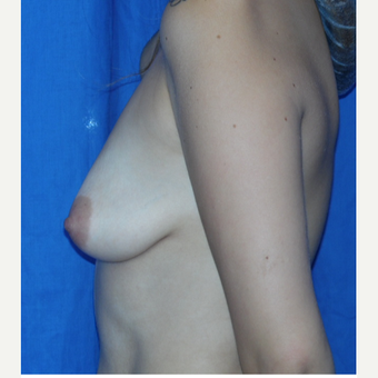 25-34 year old woman treated with Breast Augmentation before 3201237