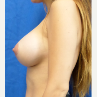 25-34 year old woman treated with Breast Augmentation after 3201237