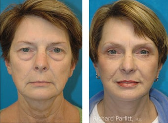 Upper and Lower Blepharoplasty with a Facelift rejuvenate this 50+ Female before 1091518