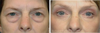 Upper and Lower Blepharoplasty with a Facelift rejuvenate this 50+ Female after 1091518