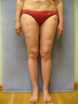 52 Year Old Female with Liposuction after 1105610