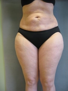 52 Year Old Female with Liposuction before 1105610