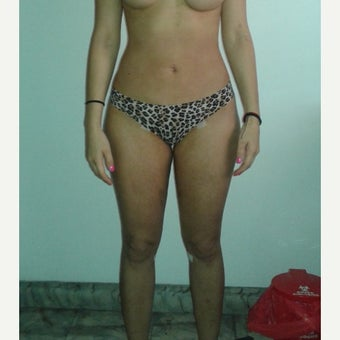 25-34 year old woman treated with Liposuction after 1939509