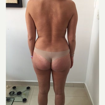 25-34 year old woman treated with Liposuction 1939509
