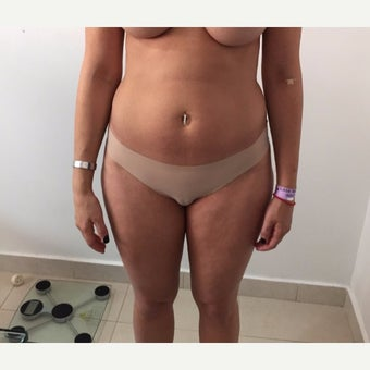 25-34 year old woman treated with Liposuction before 1939509