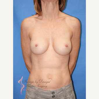 35-44 year old woman treated with Breast Implants after 3095067