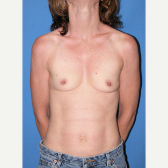 35-44 year old woman treated with Breast Implants before 3095067