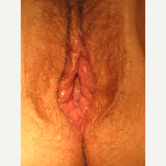 42 year old w/ Perineoplasty&Vaginoplasty after 2903688