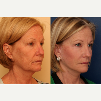 45-54 year old woman treated with SMAS Facelift after 3705822