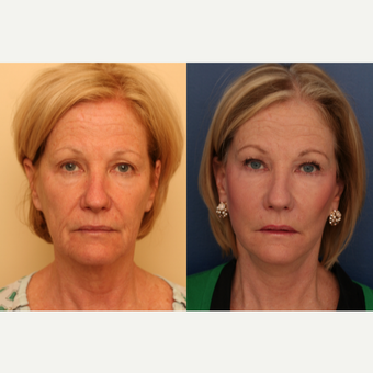 45-54 year old woman treated with SMAS Facelift before 3705822