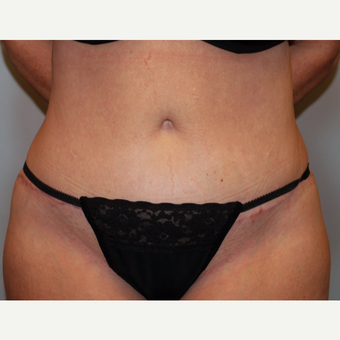 35-44 year old woman treated with Tummy Tuck after 3803267