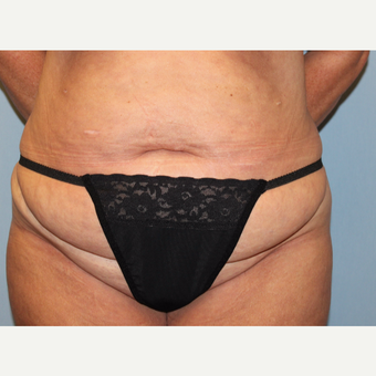 35-44 year old woman treated with Tummy Tuck before 3803267