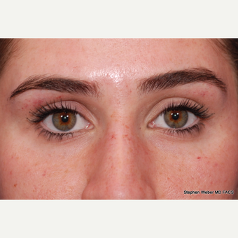25-34 year old woman treated with Botox before 3624476