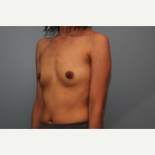 26 year old treated with 385cc silicone breast implants before 3544177