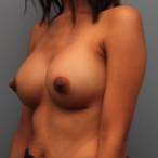 26 year old treated with 385cc silicone breast implants after 3544177